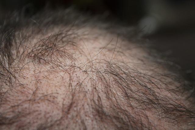 I prodotti anticaduta per capelli: quali sono i più sicuri da utilizzare